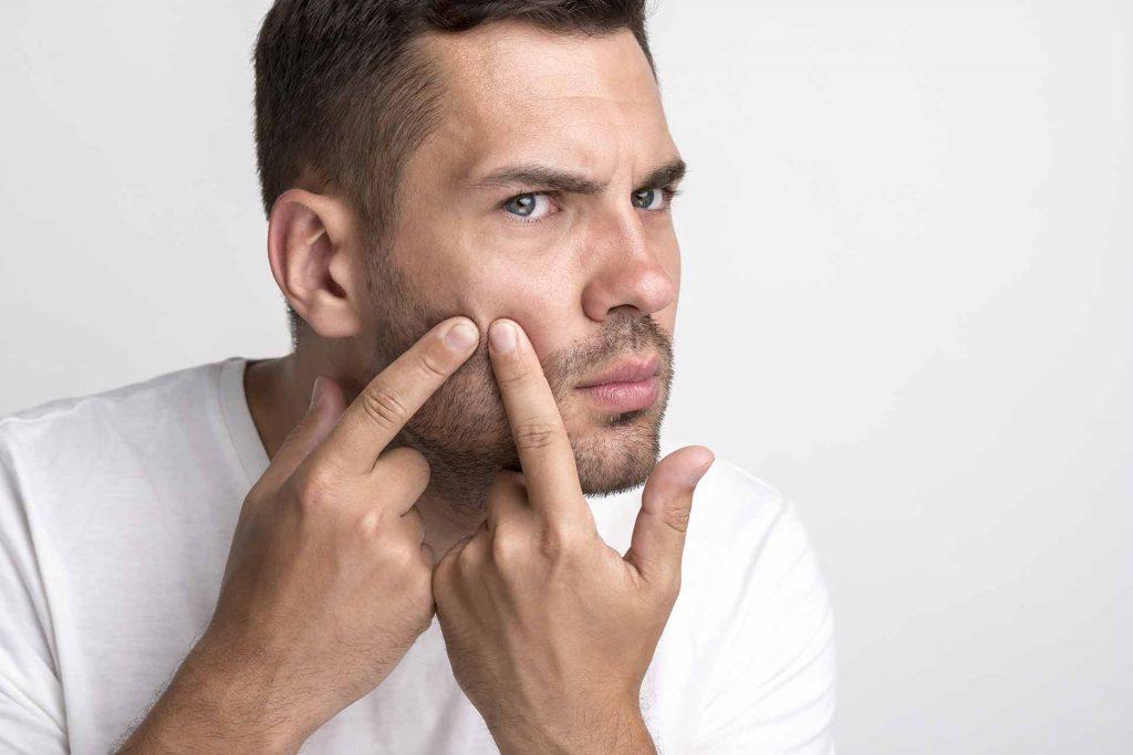 טיפול באקנה לגברים